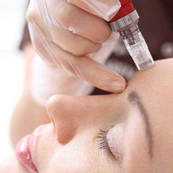 This New Microneedling Facial Might Replace the Vampire Facial