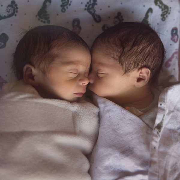 Seeing Nearly Double: These Are the Rarest Kind of Twins