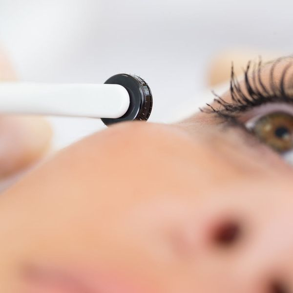 Can Micro-Needling Really Make Acne Scars Disappear?