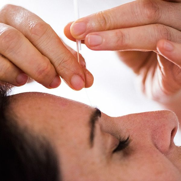 4 Ways Acupuncture Can Improve Your Appearance