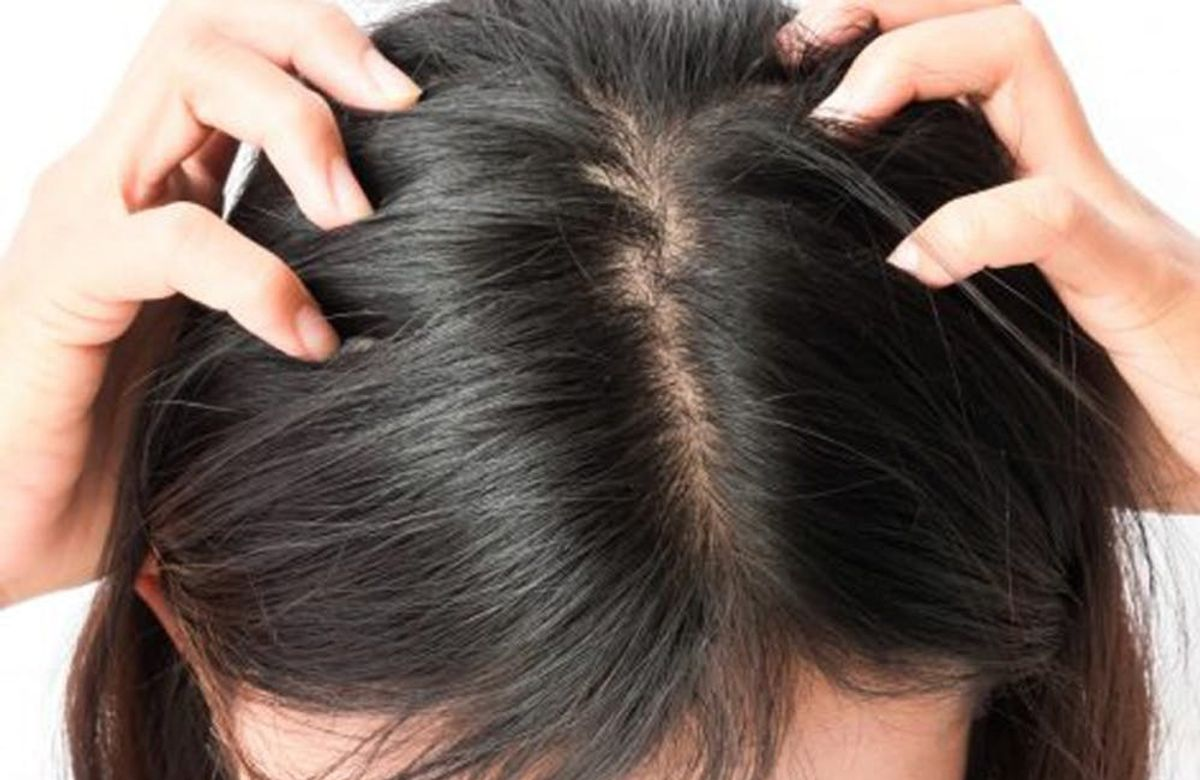 Rid get scalp 🌱 of acne how to Scalp Acne