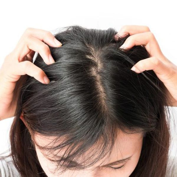 How to Treat Scalp Zits, According to Experts