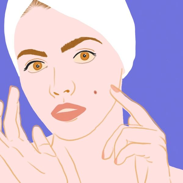 I Popped My Pimple. Now What?