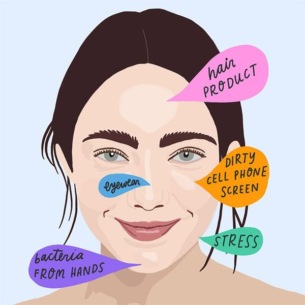 This Acne Face Map Reveals Why You're Breaking Out