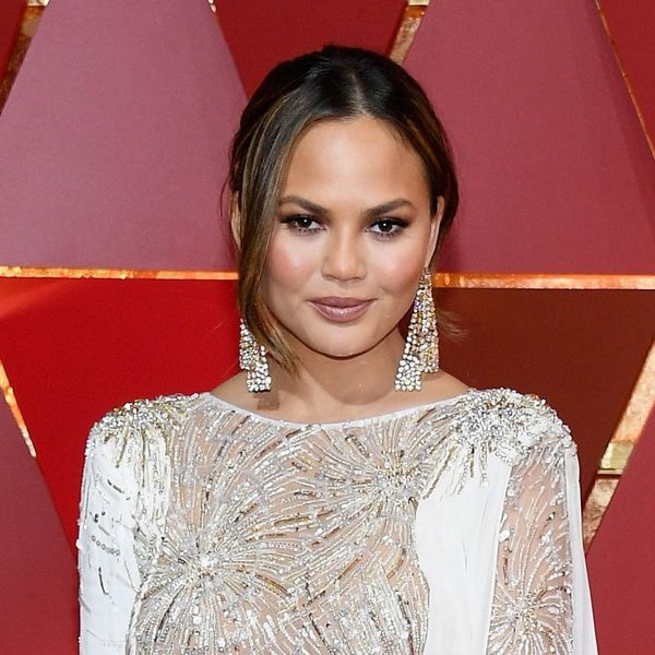 Here's the Genius Way Chrissy Teigen Covered Up a Leg Burn on the Red Carpet