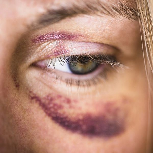 Domestic Violence in Russia Could No Longer Be Considered a Crime, Here's Why That Should Be Concerning to American Women