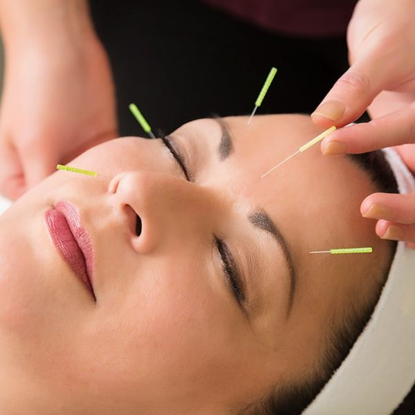 Is Facial Acupuncture the Next Botox Alternative?