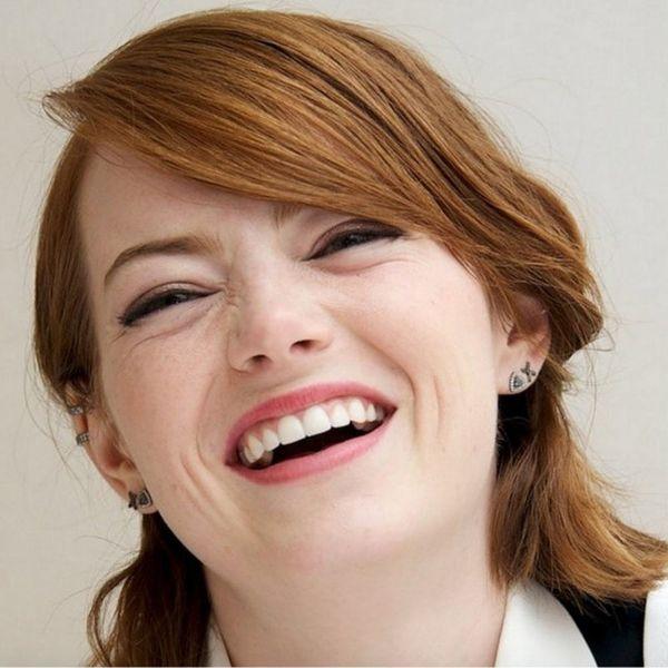 5 Celebrities Who've Struggled With Acne