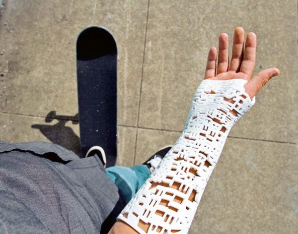 Now You Can 3D Print Messages into Your Cast