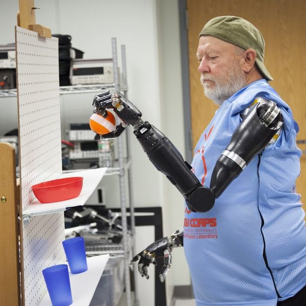 This Man Can Control His Mechanical Arms With His Mind